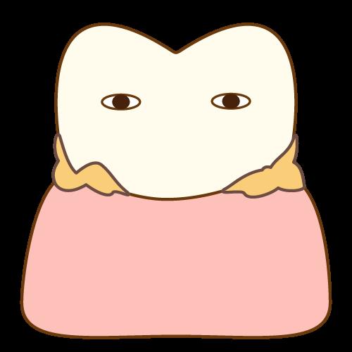 歯周ポケットに歯垢がついた状態