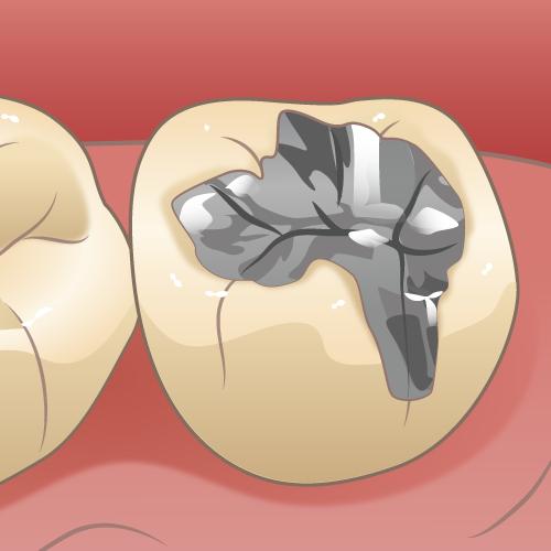 二次カリエスになる前の歯