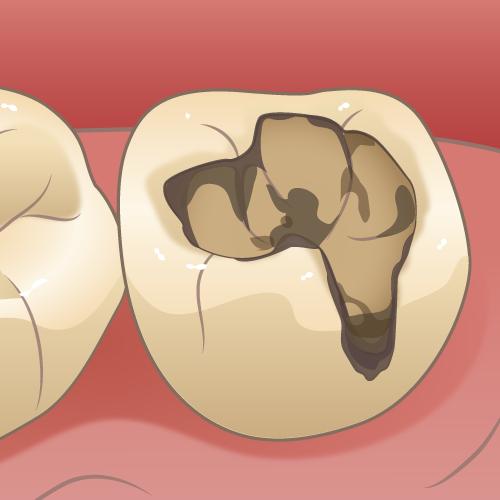虫歯が再発して二次カリエスになった歯