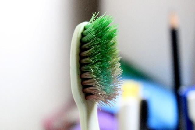 虫歯にならないために気をつけたい予防法