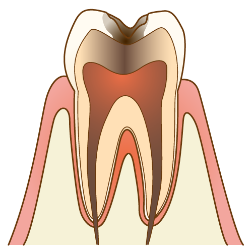 虫歯 C3