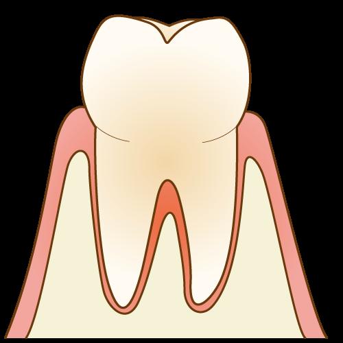 健康な歯のイメージ写真