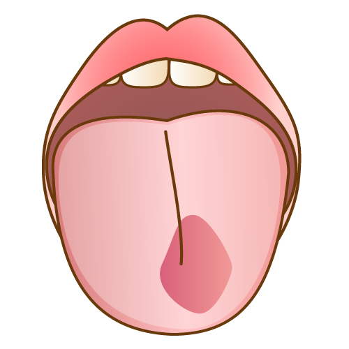 炎症を起こした舌